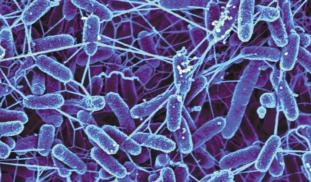 Ip63cxzrbas1zn1xnv0a electric microbes nanowires sem teaser